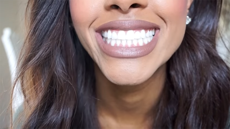 a woman happily showing off her new teeth
