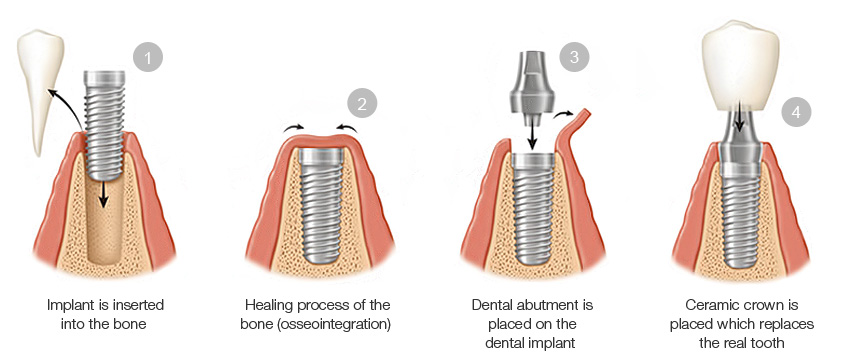 This is a picture of what getting dental implants looks like