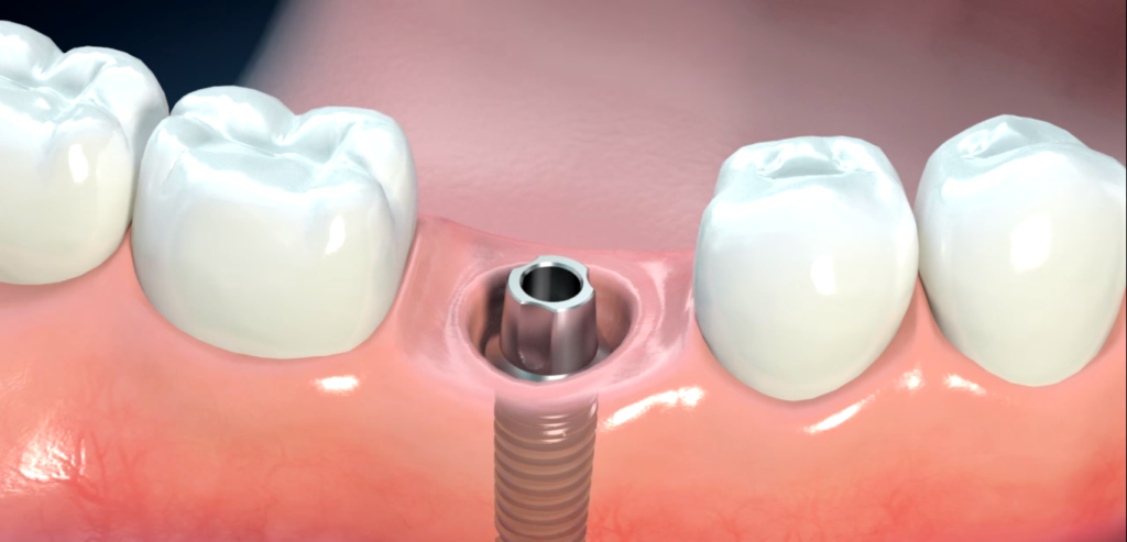 La dental implant visual
